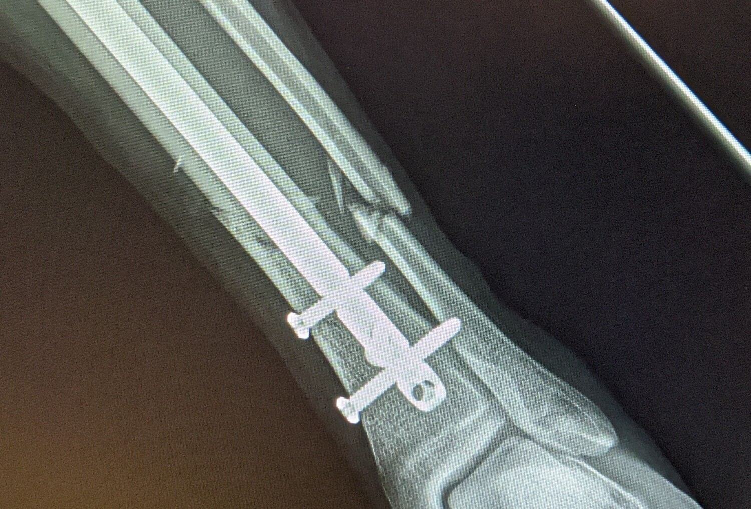 X-ray of an intramedullary nail in left tibia with a fractured fibula